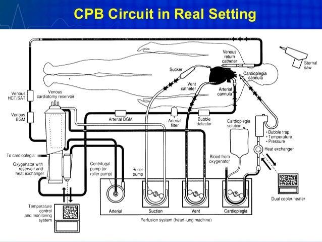 Extracorporeal Circulation Cpb Ecmo