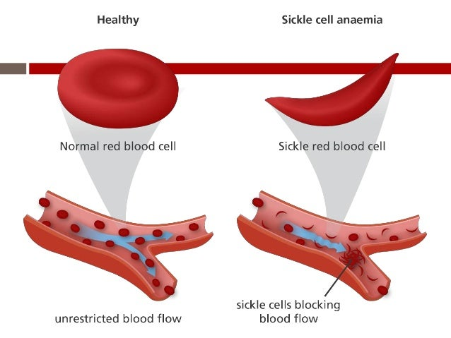 hesi case study sickle cell anemia quizlet