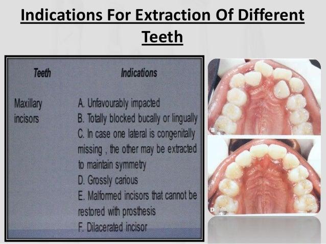 Extractions In Orthodontics Ug