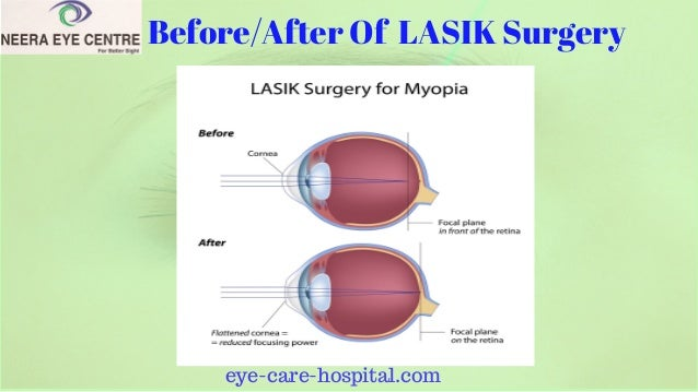 lasik surgery essay (healthday)—nine out of 10 lasik laser eye surgery patients report satisfaction  afterwards but a sizable percentage experience new visual.