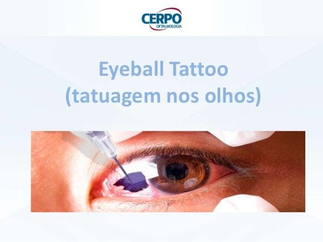 Eyeball Tattoo (tatuagem nos olhos)