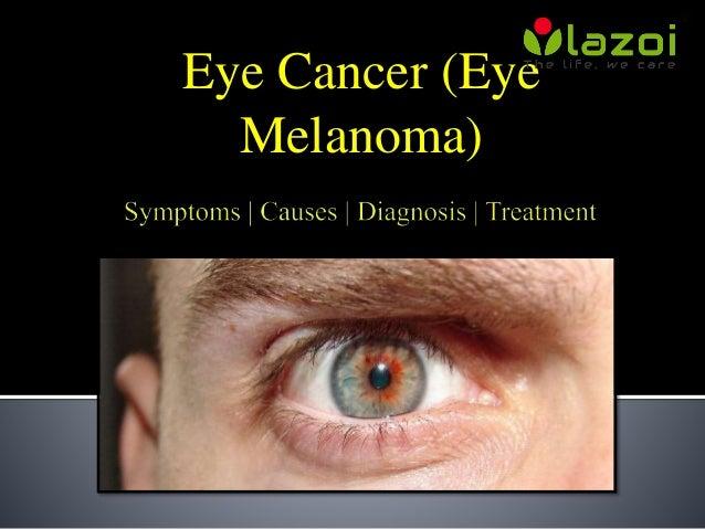 Eye Cancer (Eye Melanoma): Symptoms, Causes, Diagnosis and