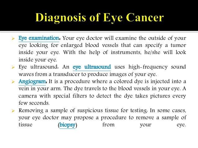 eye cancer eye melanoma symptoms causes diagnosis and treatment. Black Bedroom Furniture Sets. Home Design Ideas
