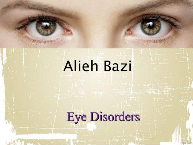 Alieh Bazi Eye Disorders