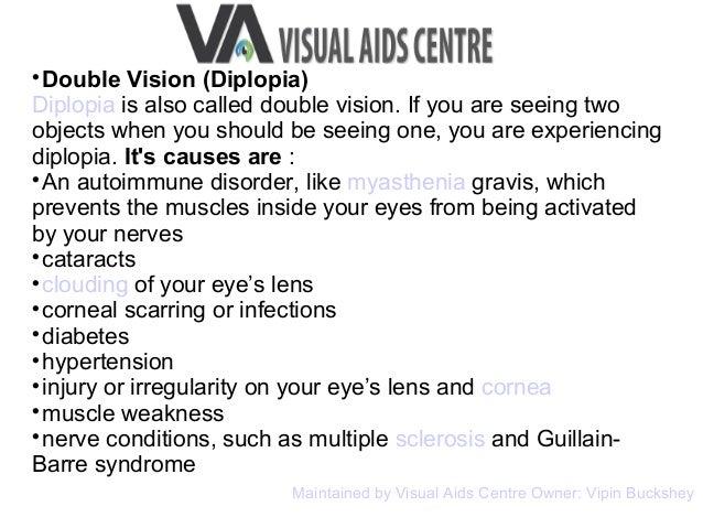 visual disturbances reviews by vipin buckshey at visual aids centre, Skeleton