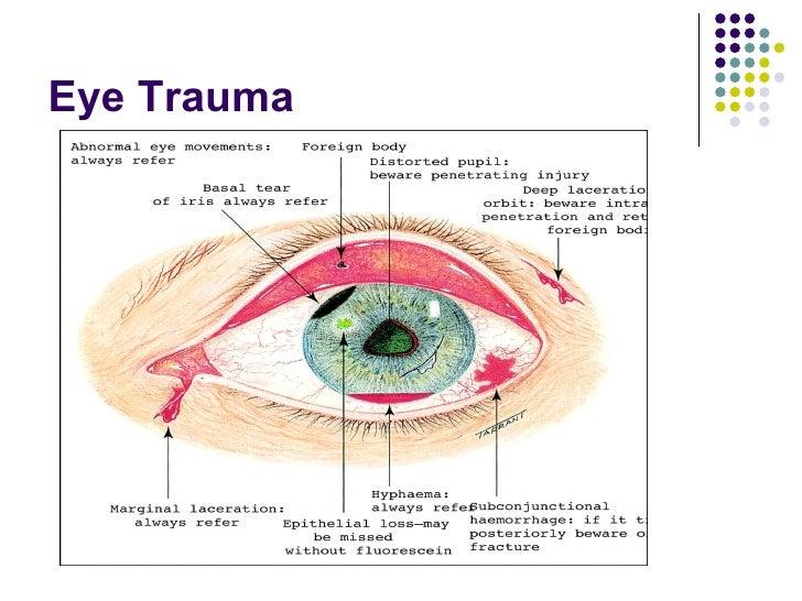 Damaged Eye Diagram Diy Enthusiasts Wiring Diagrams