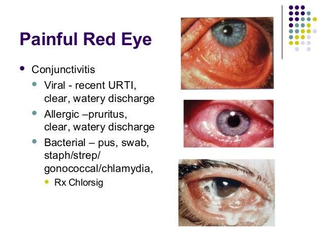 Chlamydia In The Eye Chlamydia In The Eye |...