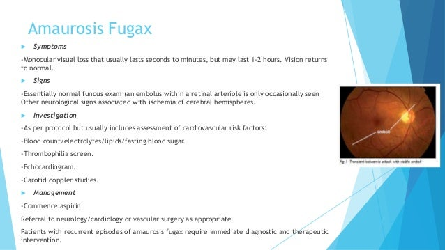 [Full text] Amaurosis fugax - delay between symptoms and ...