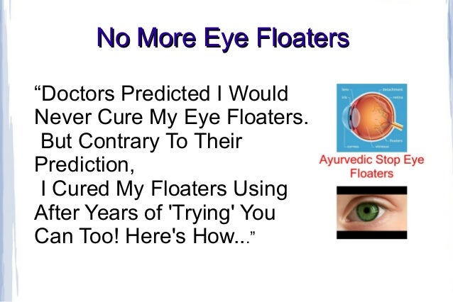 No More Eye Floaters