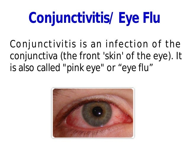 Conjunctivitis/ Eye Flu Conjunctivitis is an infection of the conjunctiva (the front 'skin' of the eye). It is also called...