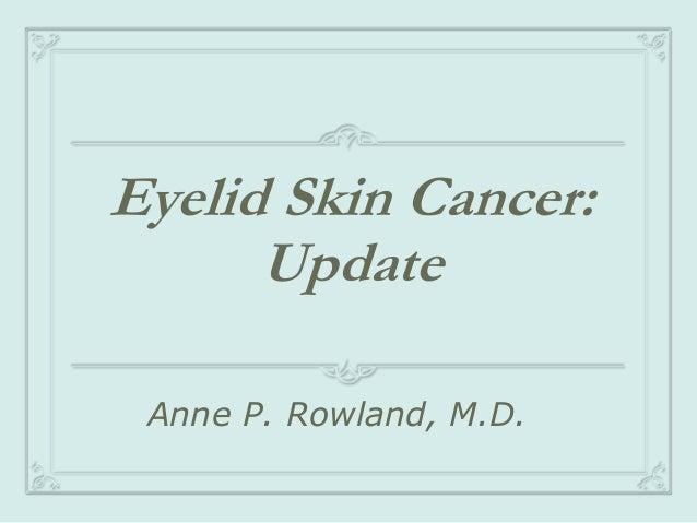 Eyelid Skin Cancer: Update Anne P. Rowland, M.D.