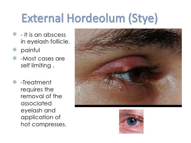 Eyelid Inflammation Tumors