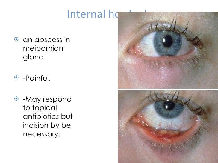 eyelid inflammation amp tumors