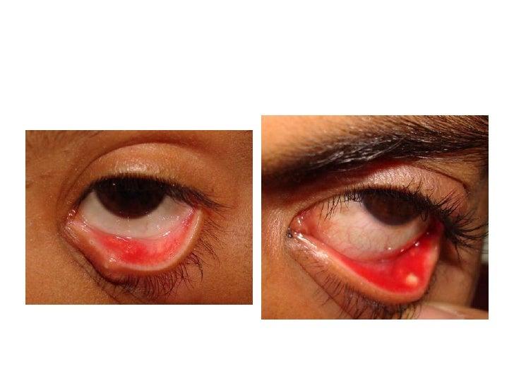 Eyelid inflammation   ...