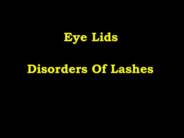 Eye Lids   Disorders Of Lashes