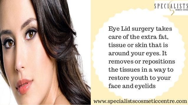 Eyelid Surgery Cochin Slide 3