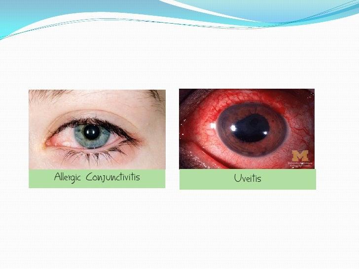 Allergic Conjunctivitis   Uveitis