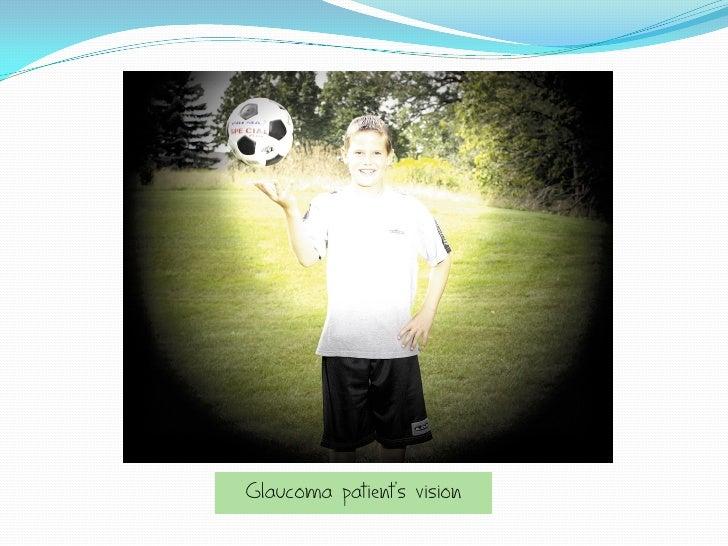 Glaucoma patient's vision
