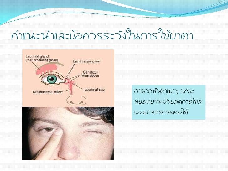 ค้าแนะน้าและข้อควรระวังในการใช้ยาตา                       การกดหัวตาเบาๆ ขณะ                       หยอดยาจะช่วยลดการไหล   ...