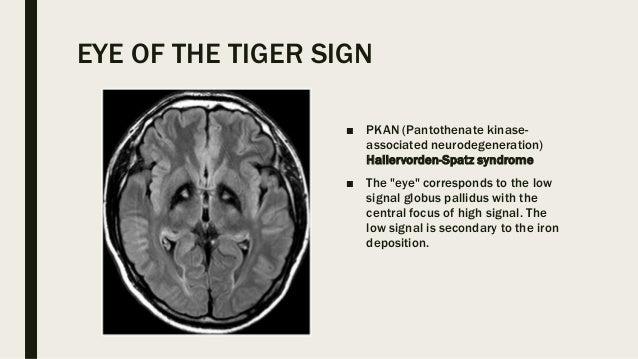 Eye Signs In Radiology