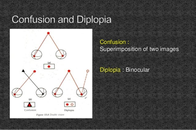 Confusion : Superimposition of two images Diplopia : Binocular