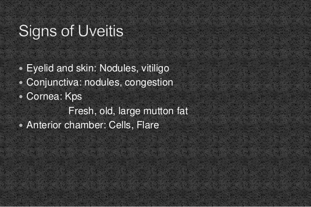  Eyelid and skin: Nodules, vitiligo  Conjunctiva: nodules, congestion  Cornea: Kps Fresh, old, large mutton fat  Anter...