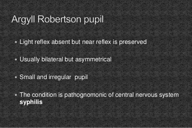  Light reflex absent but near reflex is preserved  Usually bilateral but asymmetrical  Small and irregular pupil  The ...
