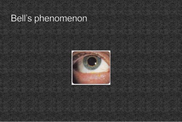  Orbital cellulitis  Rhabdomyosarcoma  Leukaemia  Metastatic neuroblastoma  Bleeding into lymphangioma  Ruptured der...