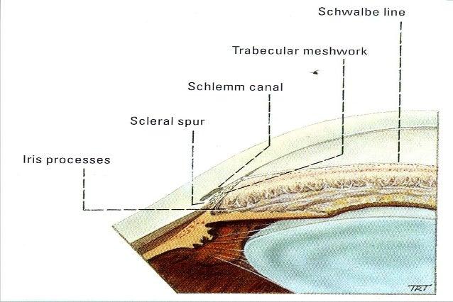  Cystoid macular edema  Delayed post-op endophthalmitis  Retinal detachment  2ry cataract  glaucoma