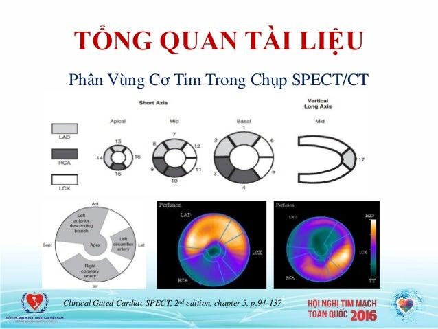 TỔNG QUAN TÀI LIỆU Clinical Gated Cardiac SPECT, 2nd edition, chapter 5, p.94-137 Phân Vùng Cơ Tim Trong Chụp SPECT/CT