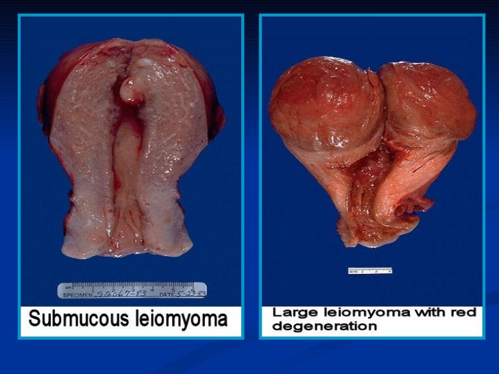 MUCINOUS TUMORSLarge cystic masses, huge size, and multiloculated. Cysts filled with stickygelatinous fluid. They either l...