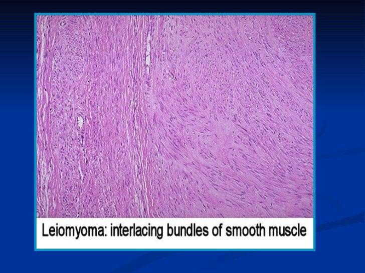 Mucinous Cystadenocarcinoma
