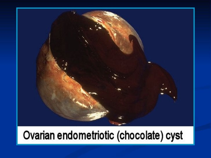 1- GRANULOSA - THECA CELL TUMOR-   5% of all ovarian tumors, of peri & post-menopausal    women.- Usually unilateral, soli...