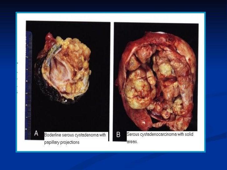 3- Choriocarcinoma:       - 50% follow hydatidiform mole & 25% follow normal             pregnancy, 20% follow abortion & ...