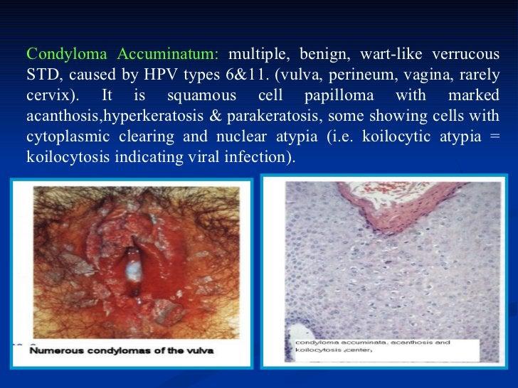    Vulvar Intraepithelial Neoplasia (VIN=    Vulvar Dysplasia):-   A premalignant intramucosal squamous neoplasm    that ...