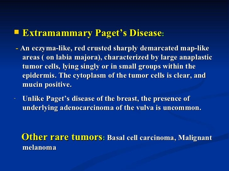 Carcinoma: primary carcinoma of the vagina is rare, but 1-2%women with cervical squamous cell carcinoma develop aconcomita...
