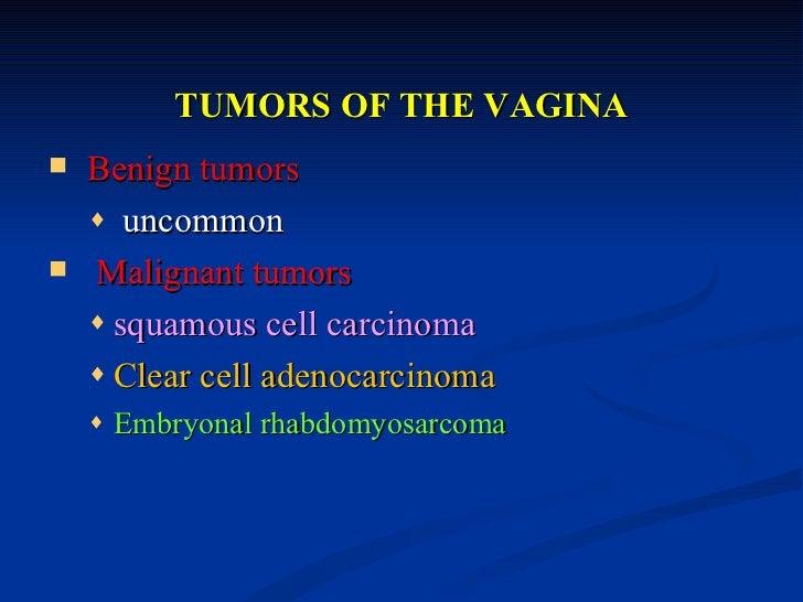 DISEASES OF THE CERVIX   Inflammation of Cervix: Cervicitis   Cervical Tumors