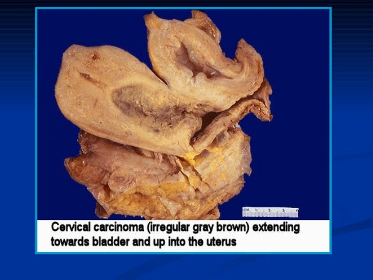 Endometrial carcinoma:- 7% of all invasive carcinomas in women- Most common invasive cancer of the female genital  tract.E...