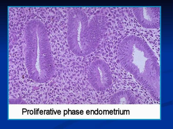 ENDOMETRIAL STROMAL SRCOMA ( MALIGNANT MIXEDMESODERMAL = MULLERIAN TUMOR ): TUMORS WITHSTROMAL DIFFERENTIATION-Rare tumors...