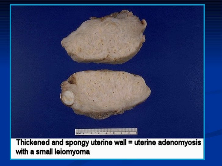 TUMORS OF THE MYOMETRIUM   Benign tumors    ♦ Leiomyoma   Malignant tumors    ♦ Leiomyosarcoma