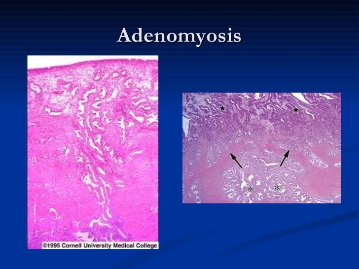    It may undergo cystic degeneration and            calcification.-    May be asymptomatic or associated with    abnorma...