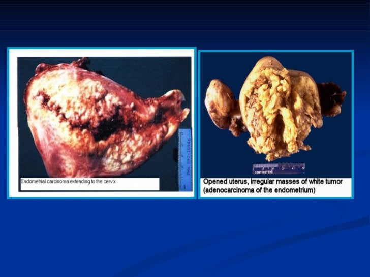 OVARIAN TUMORS-   Common forms of neoplasia in women.-   80-90% of ovarian tumors are benign.-   Most ovarian tumors occur...