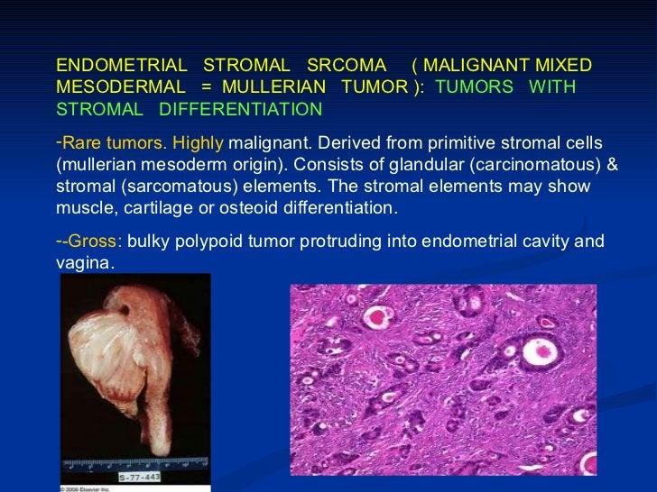 II. GERM CELL TUMORS:1- Teratoma2- Dysgerminoma (seminoma ovarii)3- Yolk sac tumor= Endodermal sinus tumor4- Embryonal car...