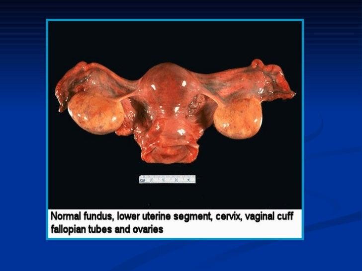 Ailments of the vagina