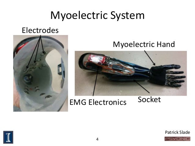senior design myoelectric prosthetic hand force diagram ion engine