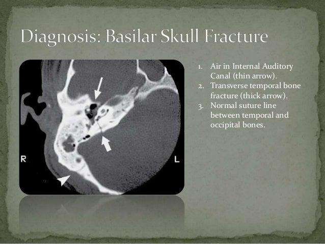 Skull fracture of basilar signs [Basilar skull