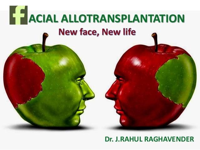 Allotransplantation