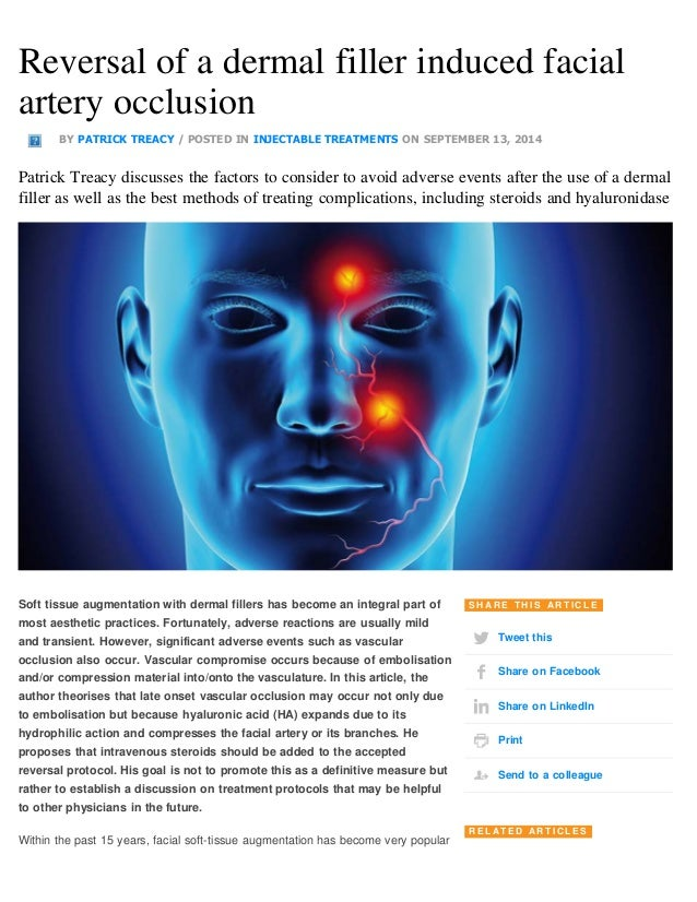Reversal of a dermal filler induced facial  artery occlusion  BY PATRICK TREACY / POSTED IN INJECTABLE TREATMENTS ON SEPTE...