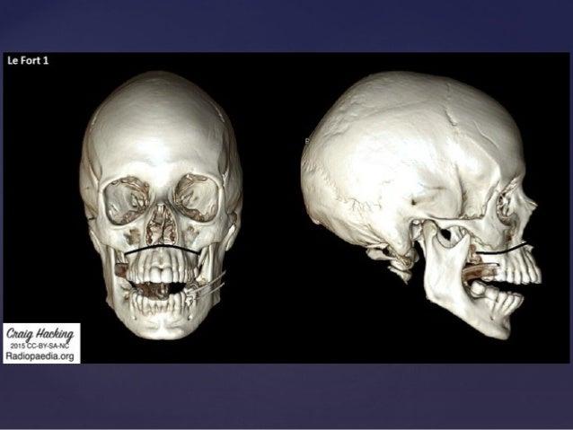 Facial Bone Fracture 90