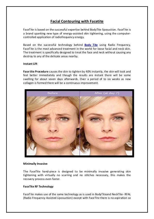 Facial Contouring with Facetite
